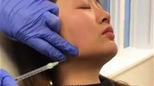 Jawline Slimming Pittsburgh | BOTOX® for Masseter Muscle | Sistine Facial Plastic Surgery
