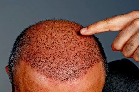 What To Expect After a Hair Transplant Procedure - Sistine Facial Plastic  Surgery